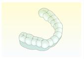 歯ぎしり・噛み締めの治療法