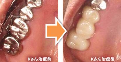 他院で「抜歯」と診断される歯でも、残せるケースがあります。