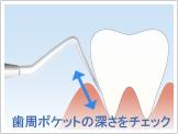 歯石除去の流れ